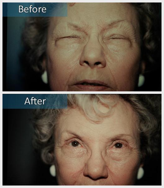 Dr  Jeffrey Edelstein - Botox