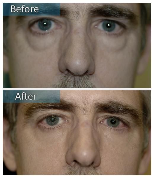 how to get double eyelids men